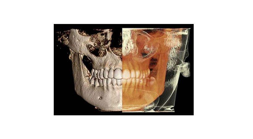 Reproducibilidad en el diagnóstico imagenológico de periodontitis apical a partir de CBCT