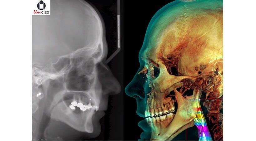 Tomografías en odontología prevendrían contagios de COVID-19