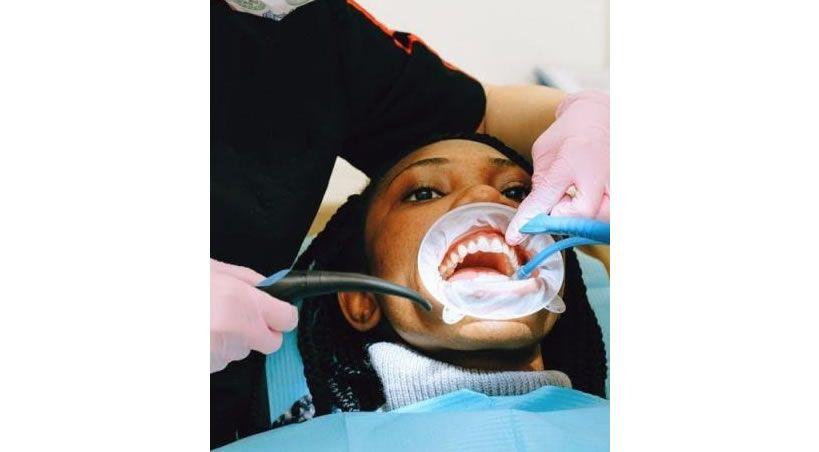 Blanqueamiento dental ¿qué debemos saber?